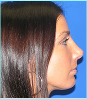 rhinoplasty postop after side view