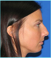 rhinoplasty preop before side view