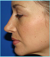 Side view after refinement of the nasal tip
