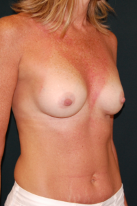 Breast Augmentation w. small 410 Cohesive Form Stable Gel Implants