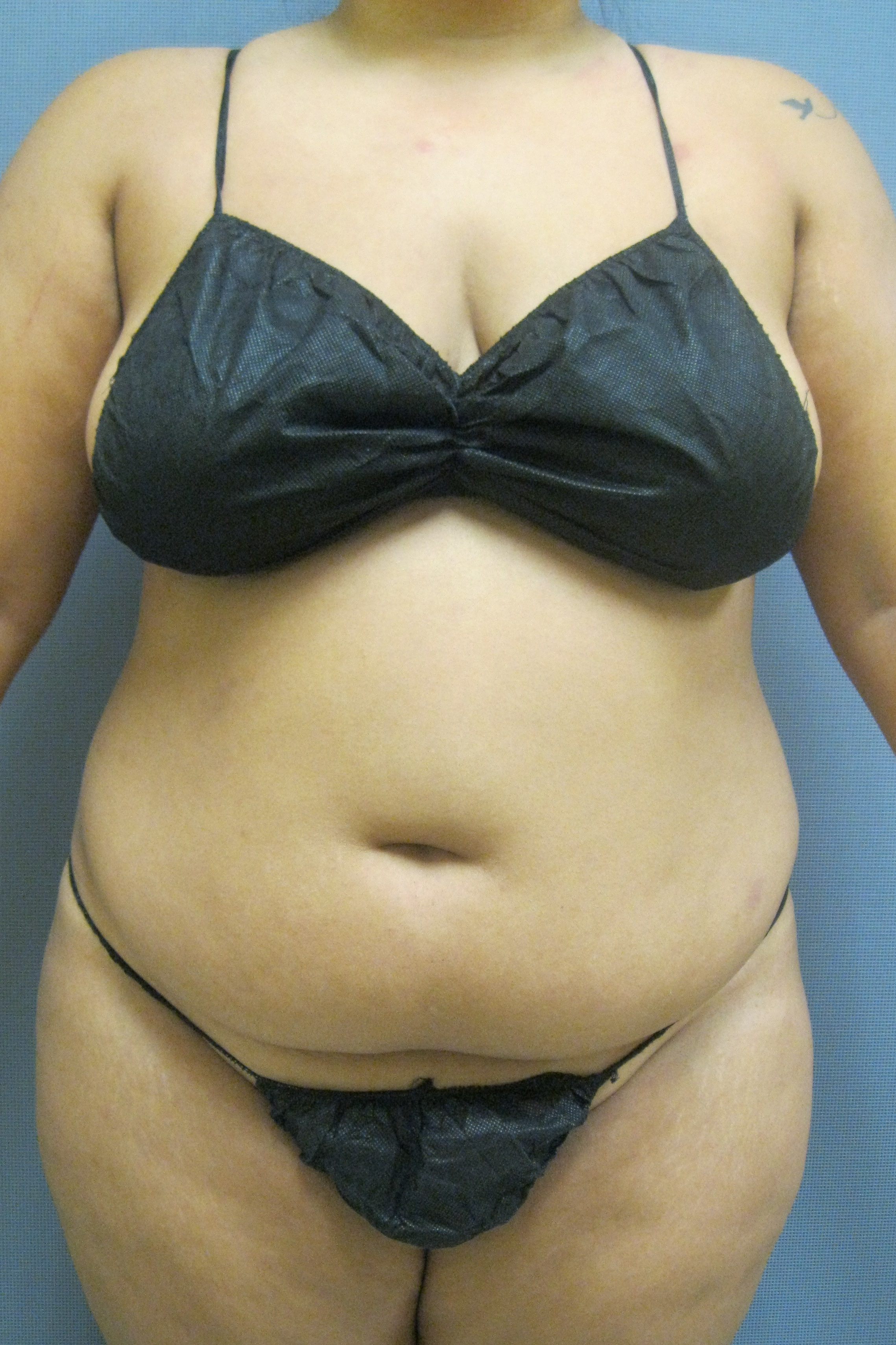 Power assisted liposuction and Smartlipo or laser assisted lipo of abdomen, waist and back bra rolls.