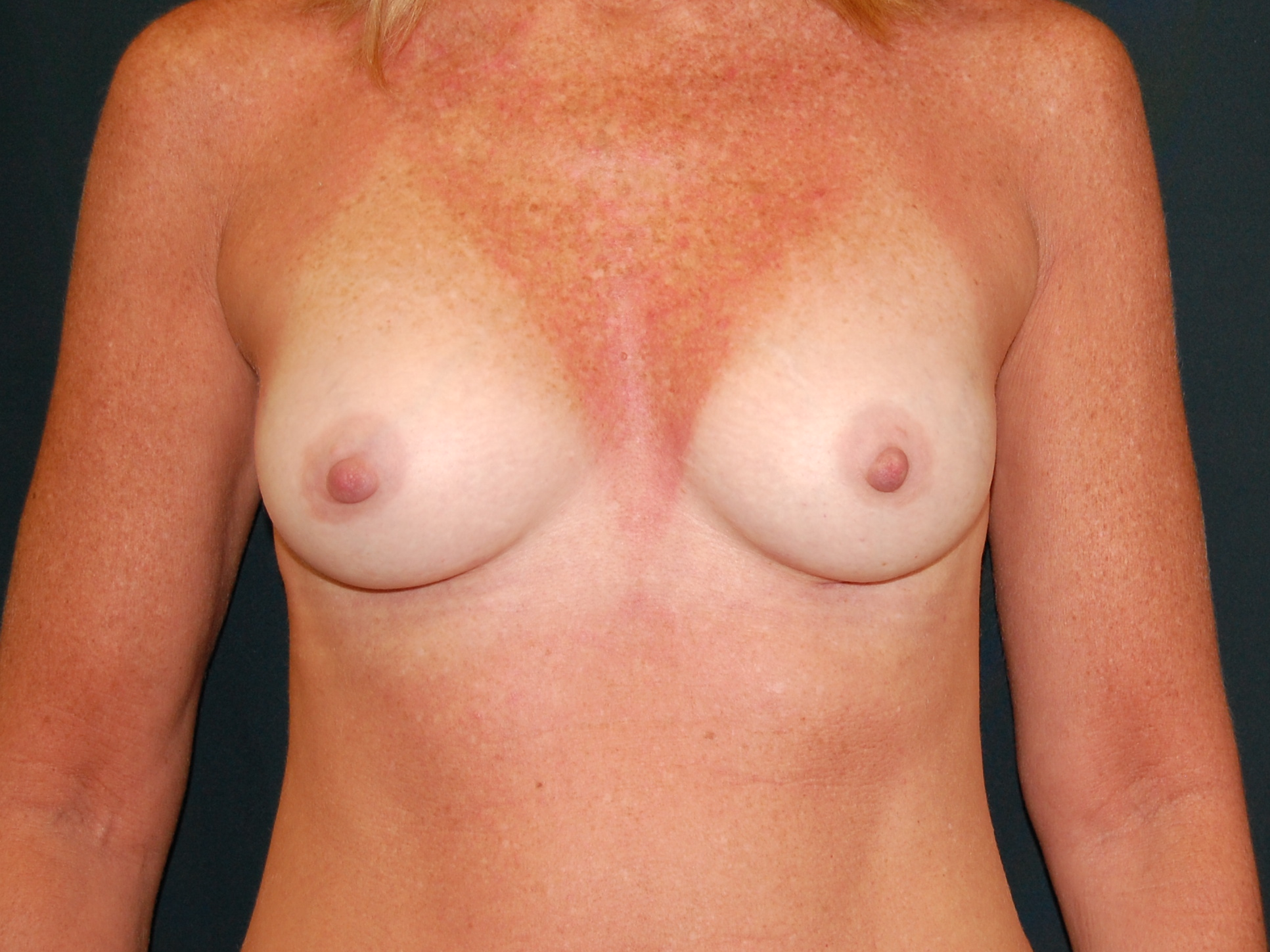 Postop Front View Breast Augmentation w. small 410 Cohesive Form Stable Gel Implants